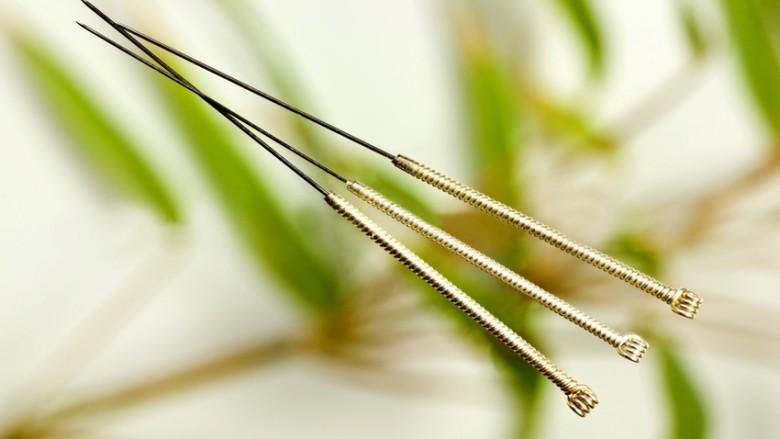 Akupunktur Bonn